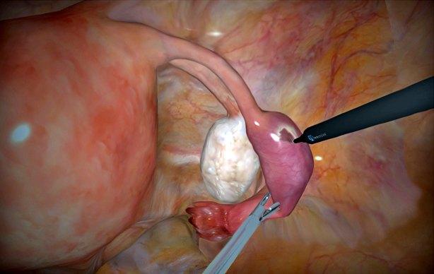 Внематочная беременность операция фото