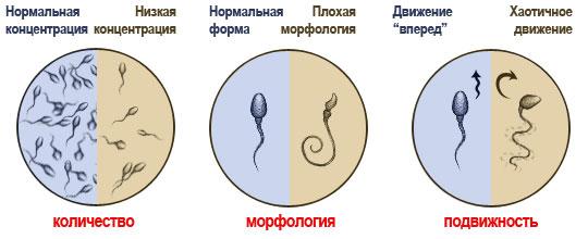 pochemu-sperma-kak-zhele-gustoe